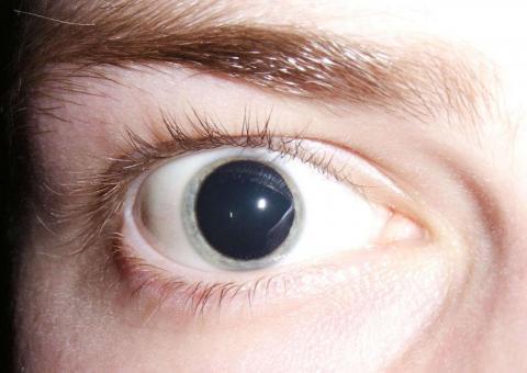 первые признаки употребления наркотиков